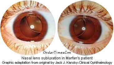 ectopia lentis syndrome
